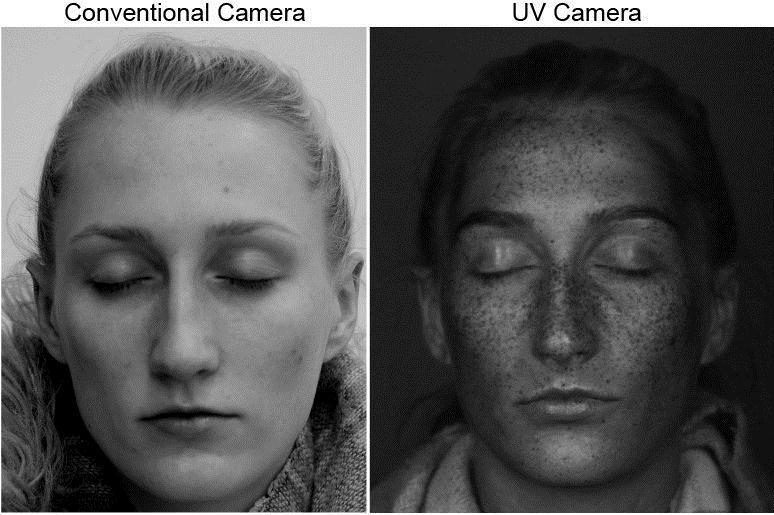 Bức ảnh được chụp bằng thiết bị đặc biệt cho thấy những tổn thương mắt thường không thể thấy