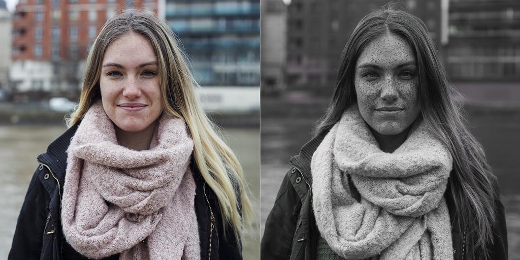 Làn da bị tổn thương bởi tia UV mà mắt thường không thể nhìn thấy